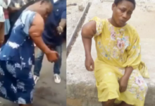 Photo of Remembering The 44-Yr Old Deformed Woman Used By Fake Pastors For Fake Miracles